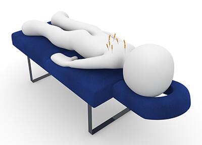 Akupunktura pri ED